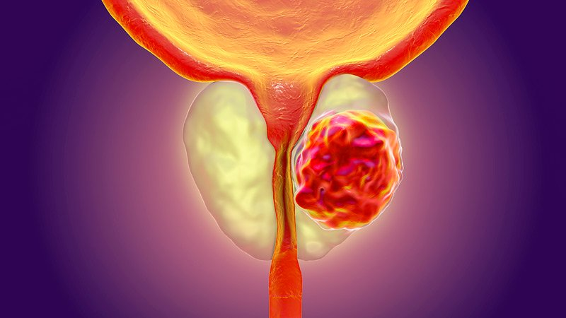 5 Prostate cancer facts a Ghanaian Man should know   Viva Health ...